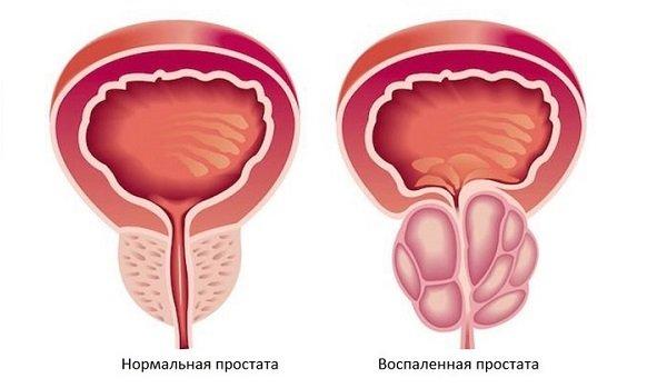https://prostatits.ru/