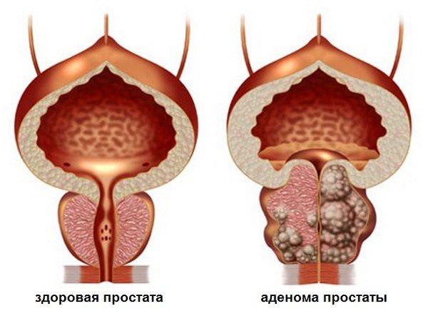 нормальная и пораженная предстательная железа