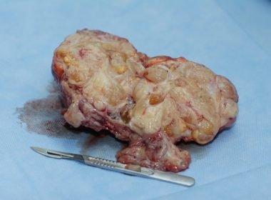 Аденокарцинома предстательной железы: лечение и прогноз