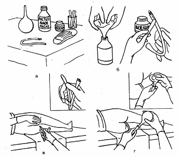 Эффективное лечение простатита в домашних условиях