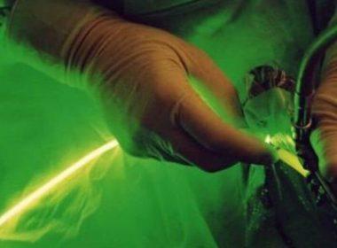 Методы удаления аденомы простаты с помощью лазера
