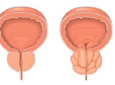 Гиперплазия предстательной железы – особенности лечения