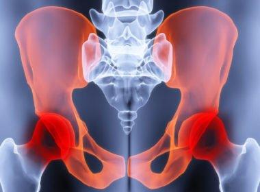 Причины и лечение синдрома хронической тазовой боли