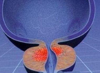 Что такое фиброз простаты у мужчин и чем опасен