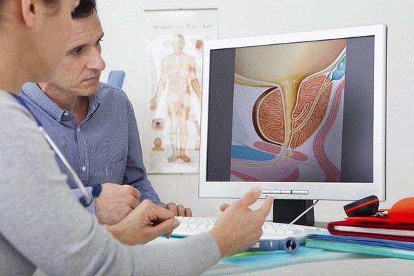 Мелкие участки фиброза простаты  Лечение потнеции