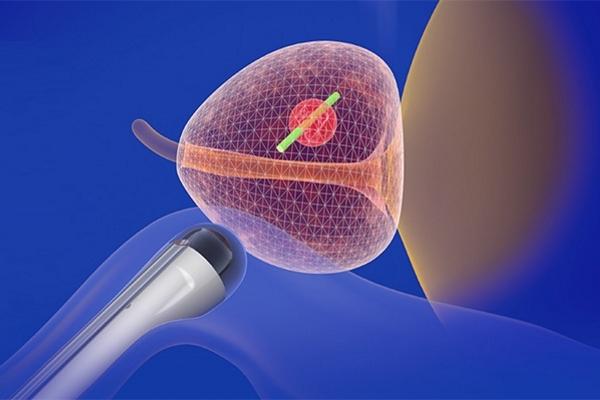 принцип биопсии
