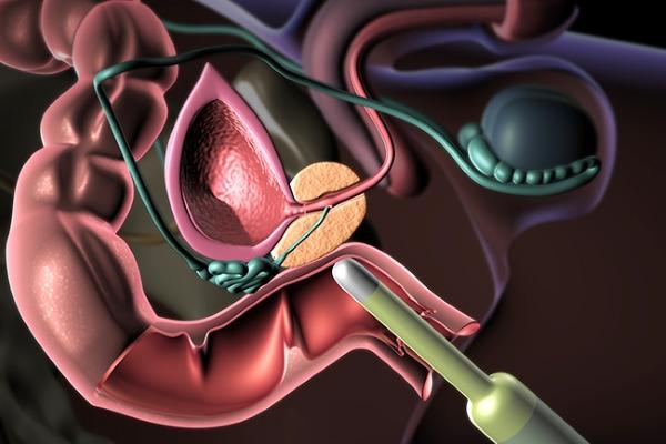 методика биопсии простаты под контролем ТРУЗИ